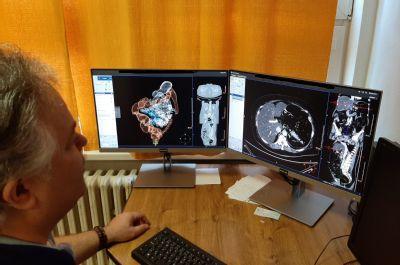 Virtuální kolonoskopií odhalují lékaři Podhorské nemocnice nejen onemocnění tlustého střeva